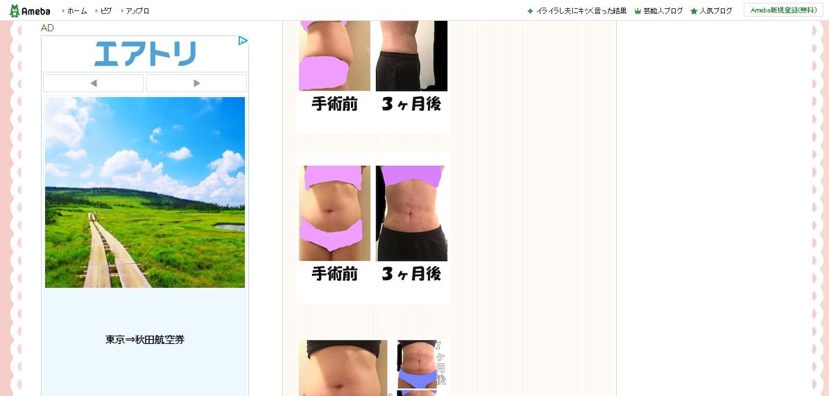 ☆うぃるのブログ☆脂肪吸引体験
