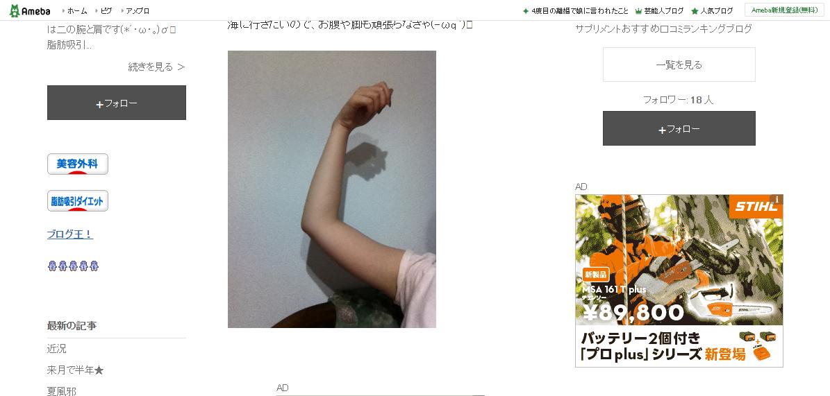 ダイエット☆二の腕&肩の脂肪吸引