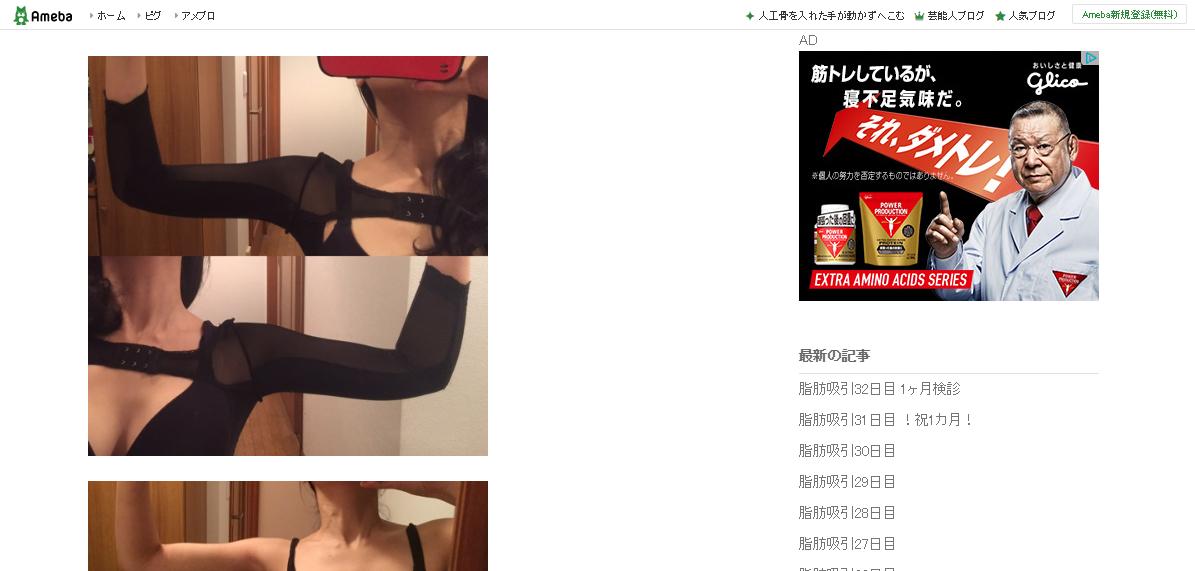 ぽよの二の腕脂肪吸引ブログ